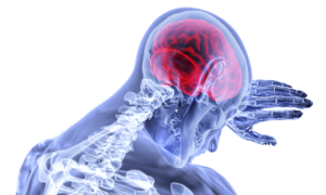 Brain inflammation in Federal employees
